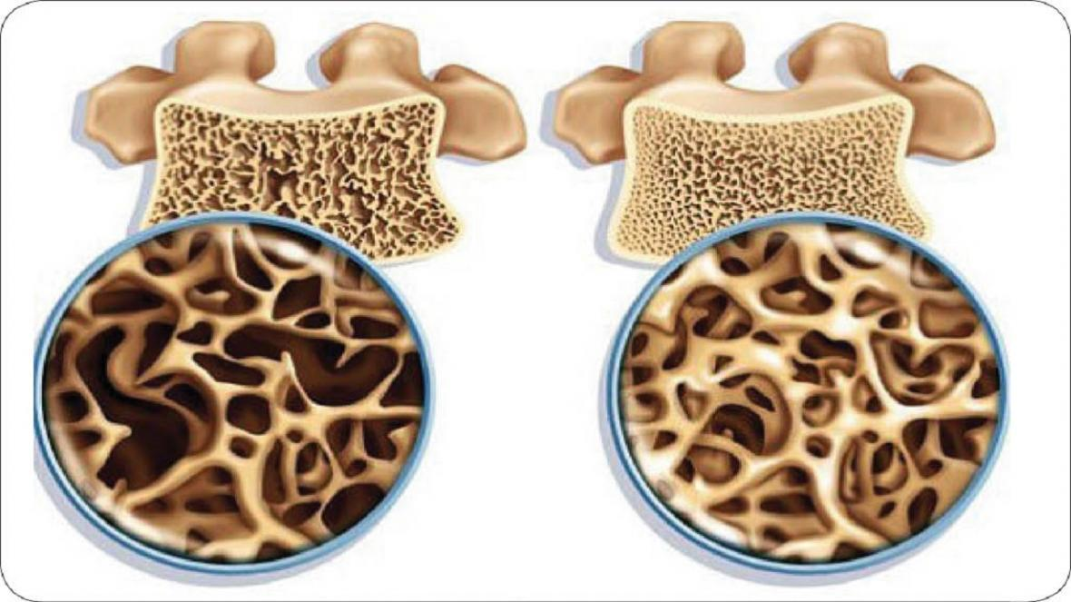 نکاتی مهم برای سلامت استخوان ها